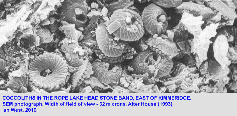 Coccoliths, as seen by SEM, in the Rope Lake Head Stone Band, Rope Lake Head, Kimmeridge, Dorset